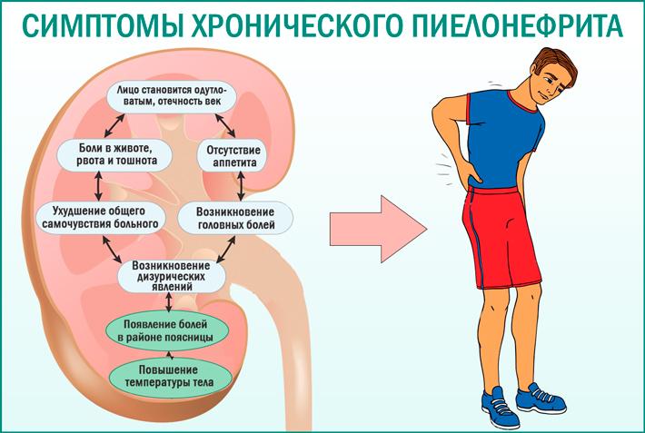Хронический пиелонефрит. Симптомы