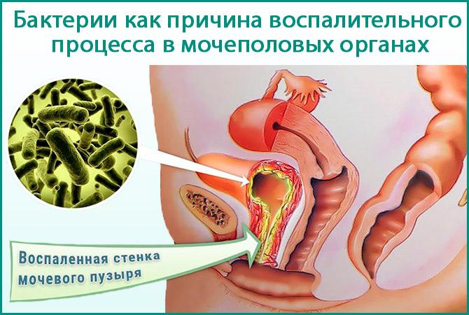 Бактерии в мочевом пузыре
