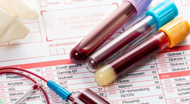 Кровь из вены на анализ