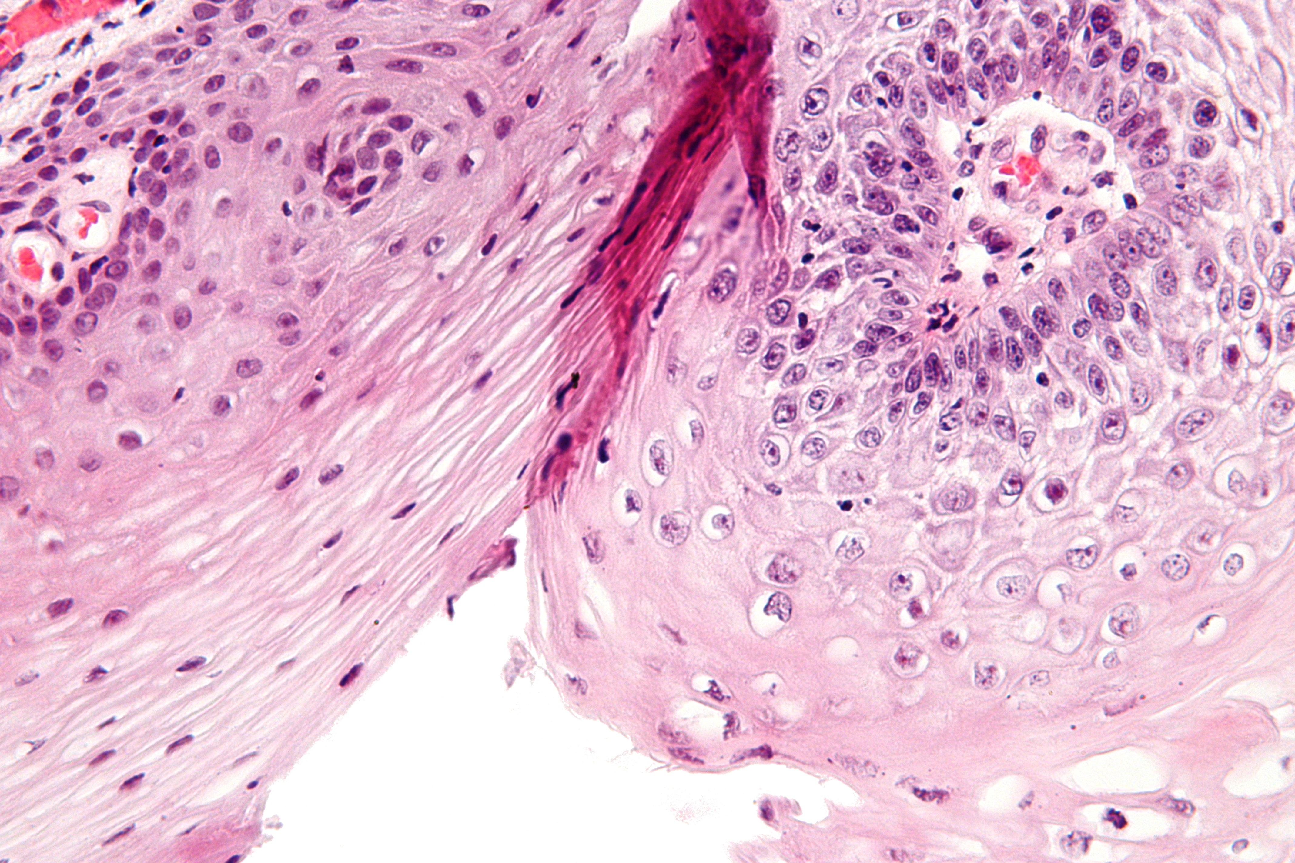 Как выглядят кондиломы под микроскопом