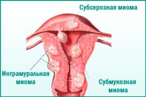 Міома матки: причини