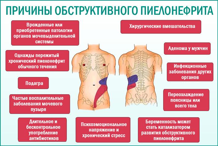 Острый обструктивный пиелонефрит: причины