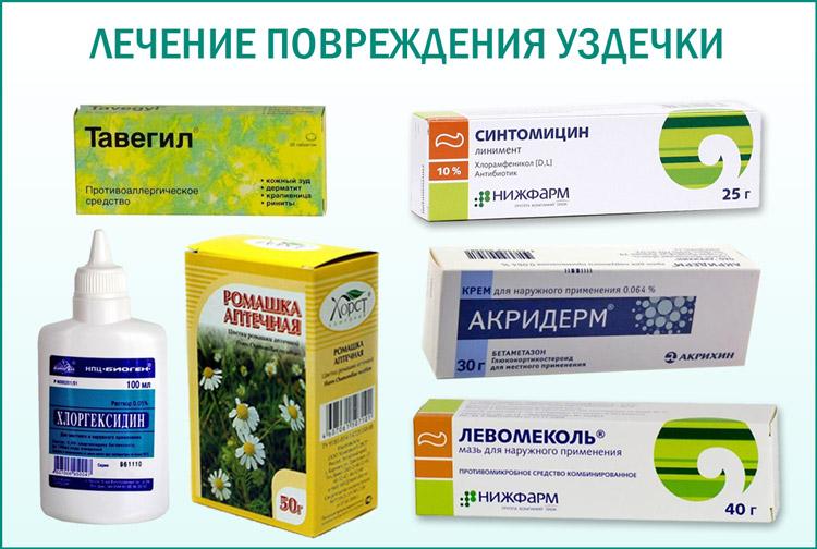 Препараты для лечения повреждений уздечки