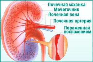 Реноваскулярная гипертензия: симптомы болезни