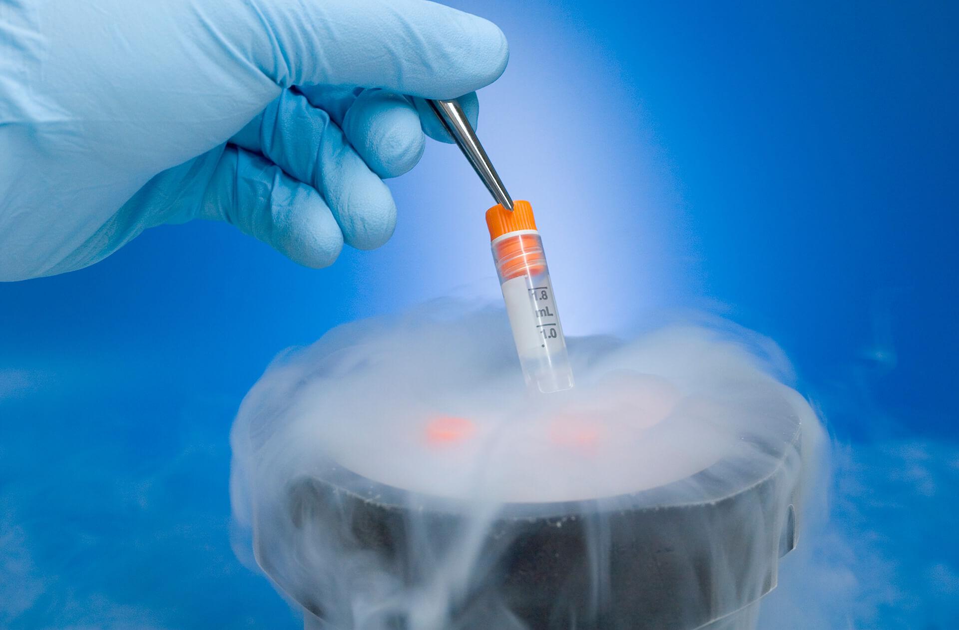 Можно ли прижигать папиллому жидким азотом