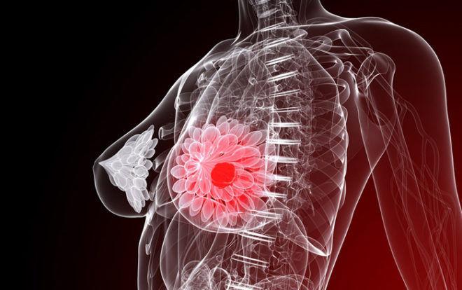 Уплотнение в молочной железе при узловой мастопатии