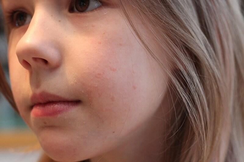Чем лечитьпапилломы на лице у детей.