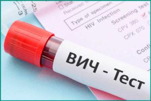 ВИЧ инфекция: причины