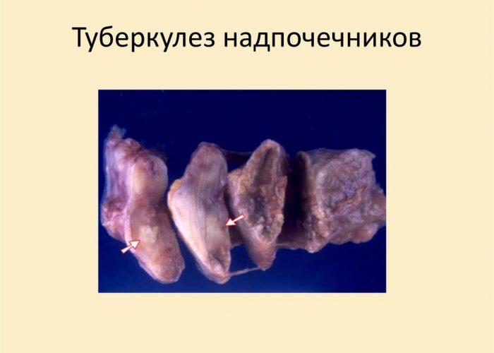 Развитие туберкулеза надпочечников