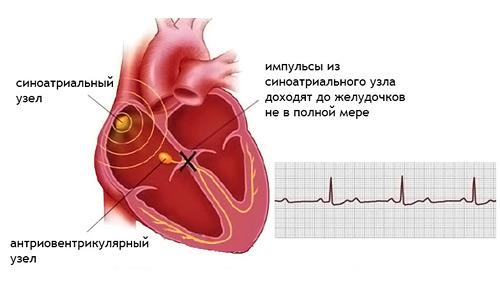 сердечная блокада