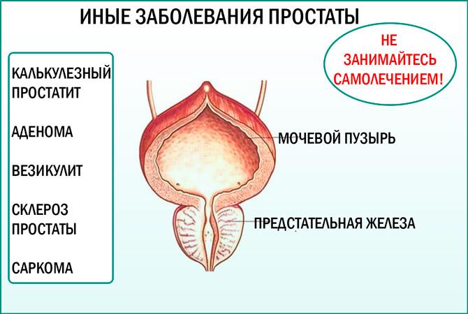 Беременность при везикулите и простатите массаж хронический простатит антибиотики