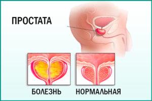 Хронический абактериальный простатит