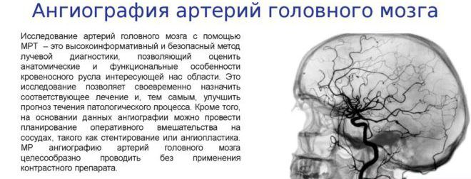 Ангиография артерий головного мозга
