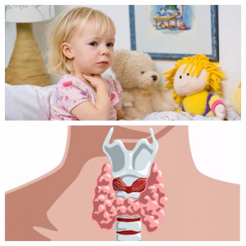 Симптомы увеличенной щитовидной железы у детей