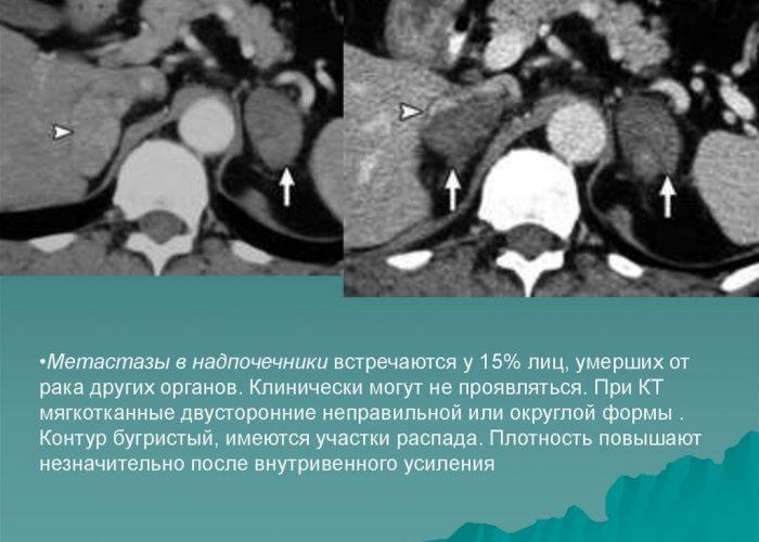 Метастазы опухолей надпочечников