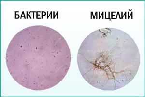 Бактерии и мицелий в моче
