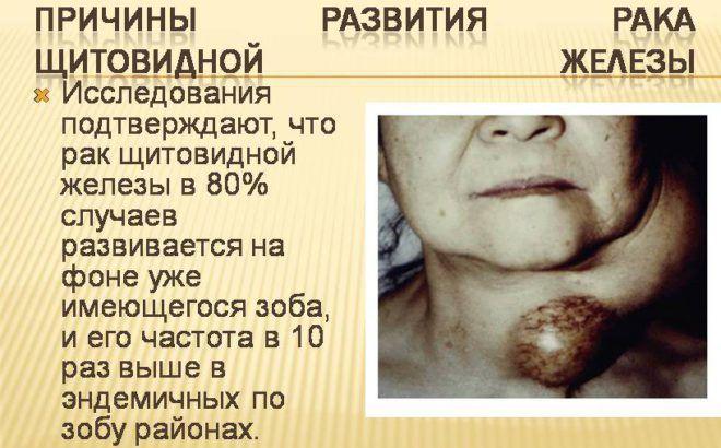 Причины развития рака щитовидной железы