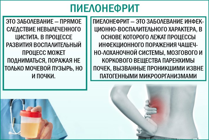 Заболевание пиелонефрит