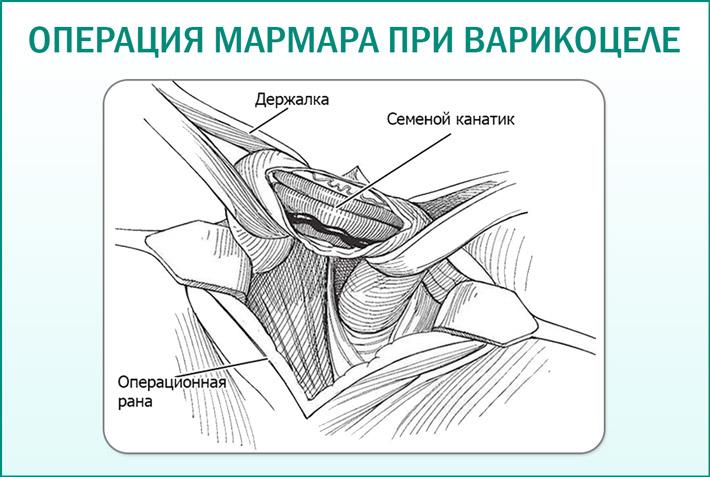 Операция по методике Мармара
