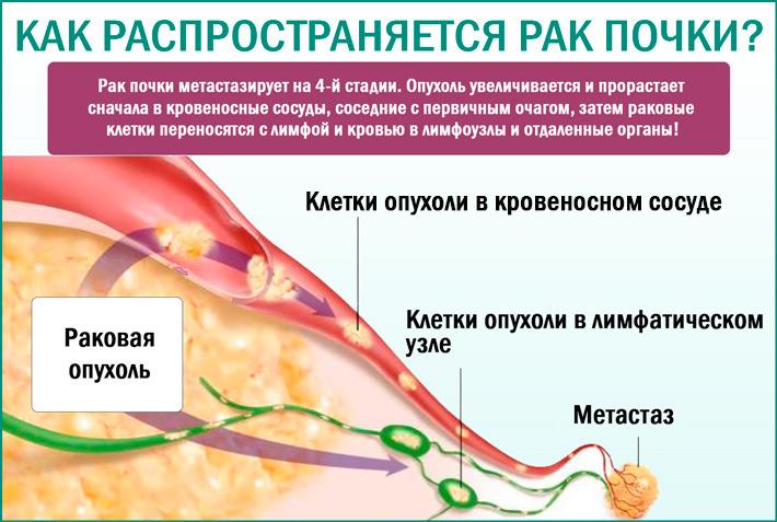 Рак почек: как распространяется болезнь