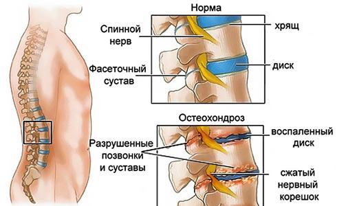 Остеохондроз и боль в груди