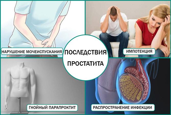 Осложнения воспаления простаты