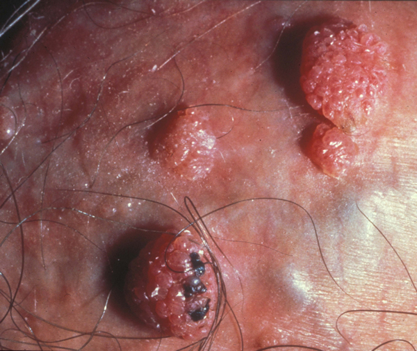 Кондиломы и их симптомы