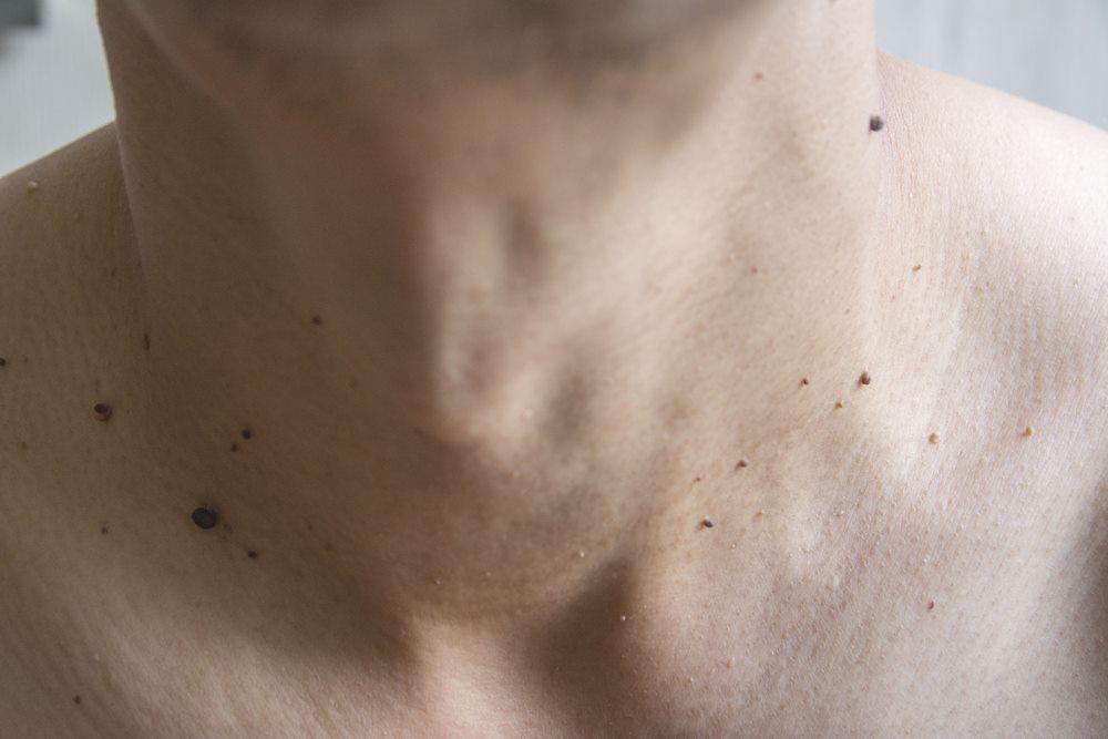 Когда появляются бородавки на теле