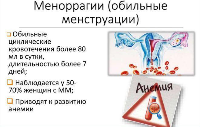 Обильные менструации
