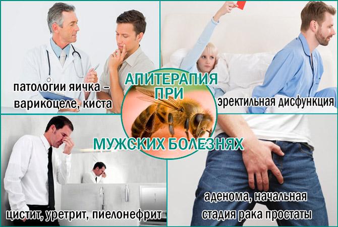 Лечение аденомы с помощью апитерапии