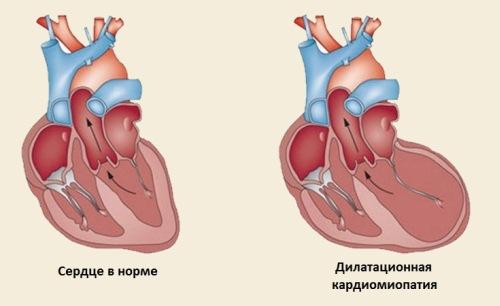 формы дилатационной кардиомиопатии