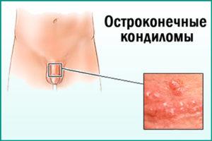 ВПЧ: симптомы