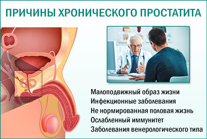 Простатит сперма качество массажер простаты петербург