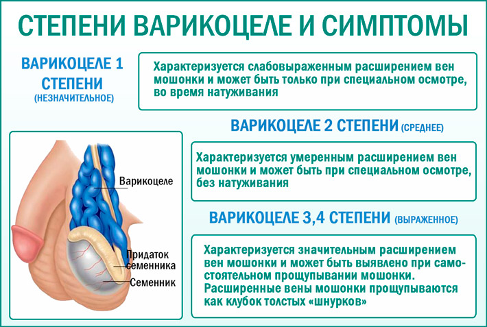 Варикоцеле 3 степени: симптомы