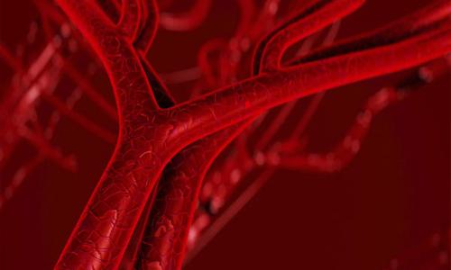 состояние сосудов при гипертензии