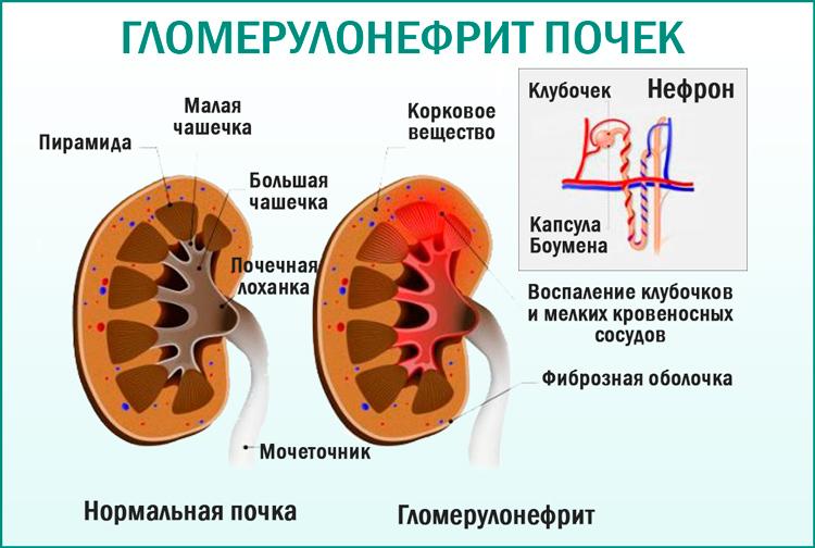 Гломерулонефрит. Урология, нефрология