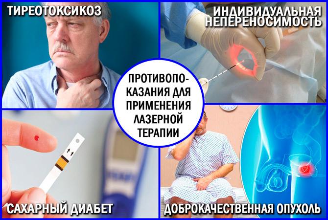 Лазеротерапия: противопоказания лечения