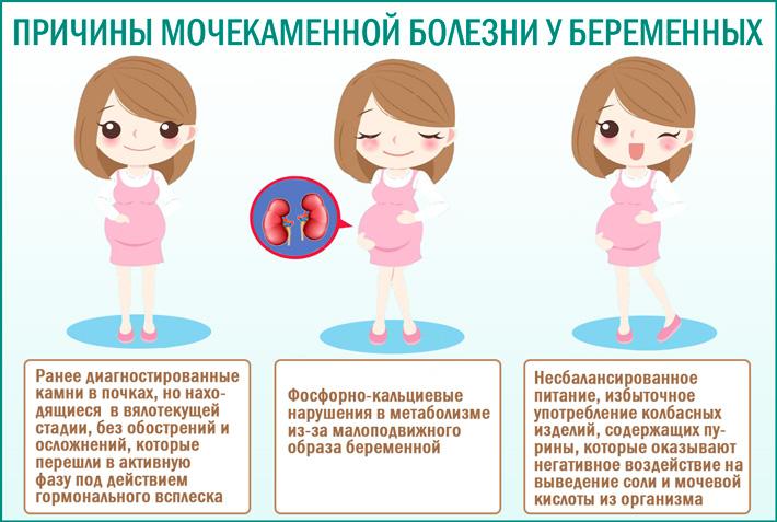 Мочекаменная болезнь во время беременности