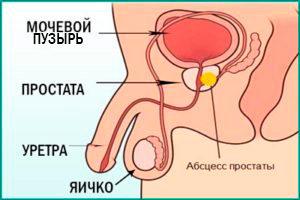 Простата у мужчин