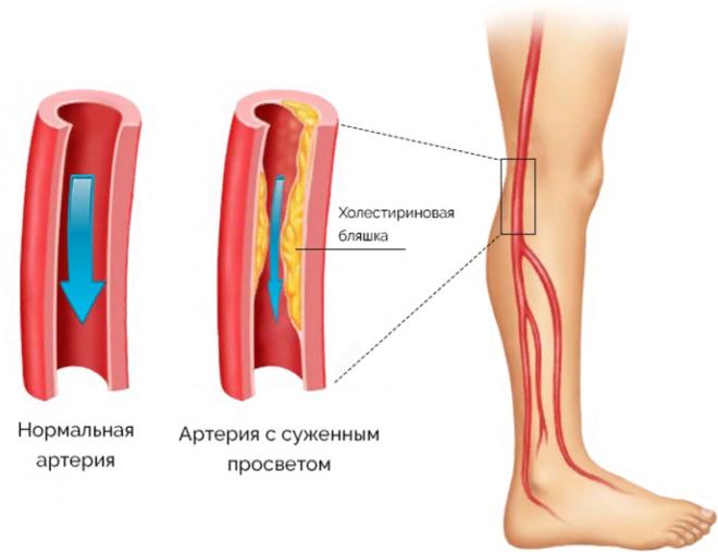 Что такое диабетическая ангиопатия нижних конечностей