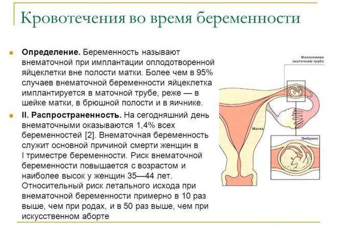Имплантация яйцеклетки вне полости матки