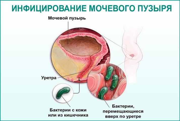 Инфекция в мочевом пузыре