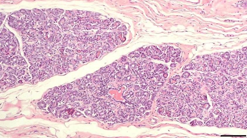 Почему появляется папиллома молочной железы.