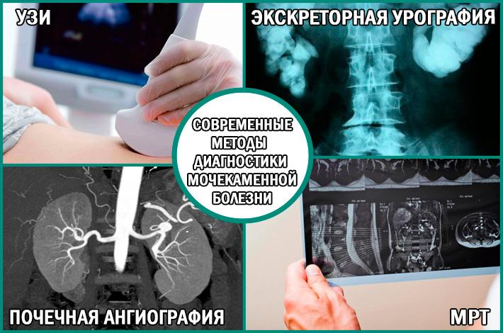 Варианты диагностики мочекаменной болезни