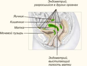Места где разрастаются очаги эндометриоза