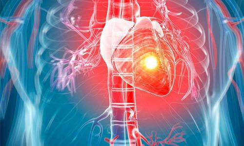 остановка сердца внезапная