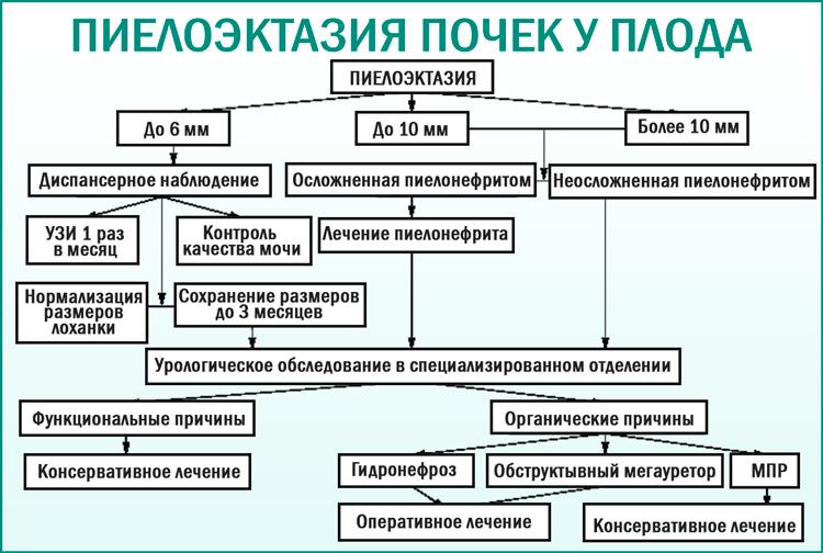Расширение почечных лоханок у плода (пиелоэктазия)