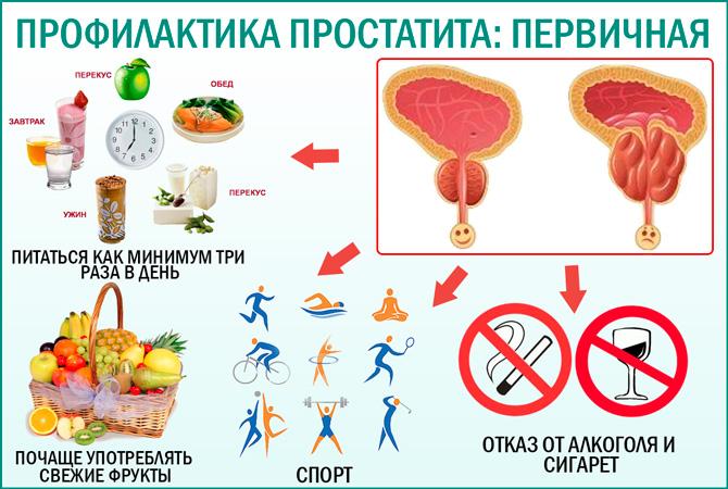 профилактика простатита врач