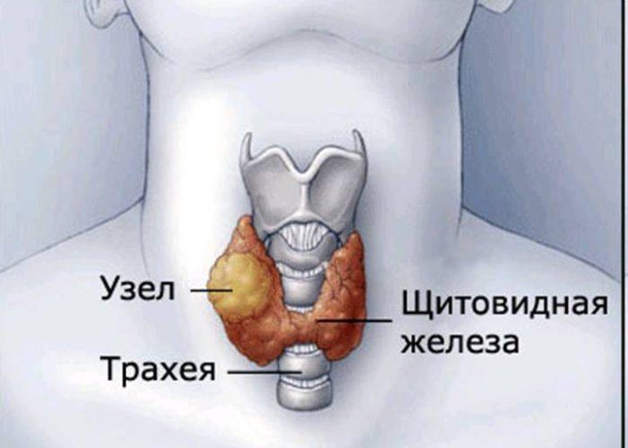 Патологий щитовидной железы