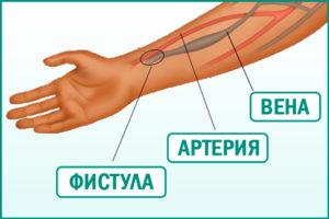 Формирование артериовенозной фистулы у пациентов с хронической болезнью почек